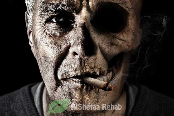 إدمان النيكوتين وأعراضه القاتلة